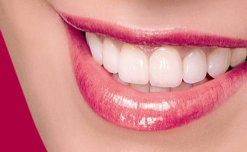 dán-răng-sứ-thẩm-mỹ-là-phương-pháp-làm-đẹp-mới (1)