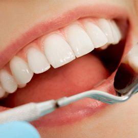 Làm thế nào để duy trì độ bền của bọc răng sứ